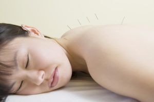 fibromyalgia pain acupuncture